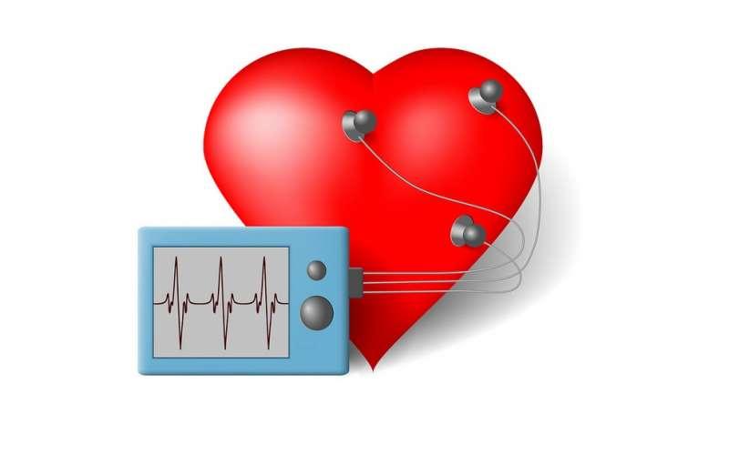 EKG metodą...