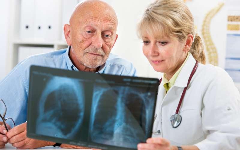 Jak zapobiegać rakowi płuc?