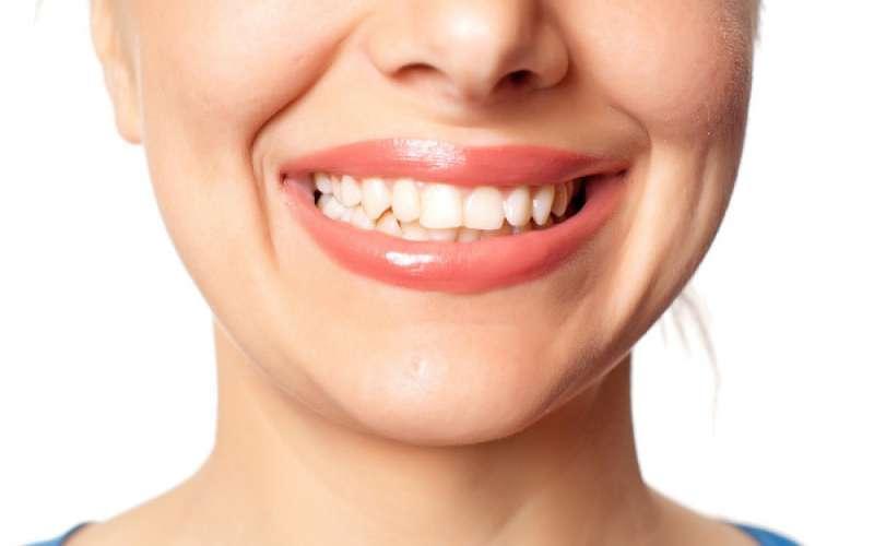 Kamień nazębny - groźny wróg zdrowej jamy ustnej